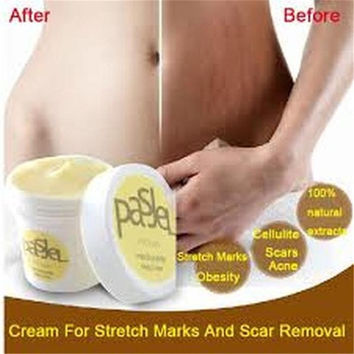 Cream Remove Scar Stretch Marks Care Postpartum Maternity Skin Body Repair (Size: One Size) = 1946955204