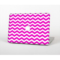 The Pink & White Chevron Pattern Skin Set for the Apple MacBook Air 13""