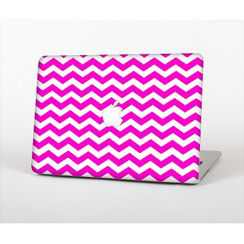 "The Pink & White Chevron Pattern Skin Set for the Apple MacBook Pro 13"" with Retina Display"