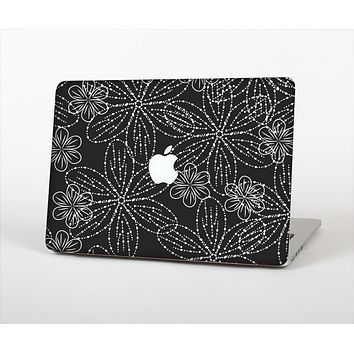 "The Black & White Floral Lace Skin Set for the Apple MacBook Pro 13"" with Retina Display"