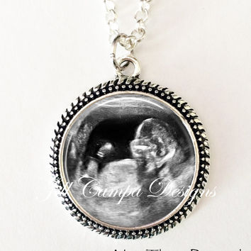YOUR BABY'S  Sonogram Necklace, Your baby's sonogram on a necklace - Ultrasound Pendant - Pregnancy Gift , New Baby