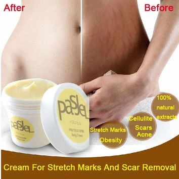 Cream For Stretch Marks And Scar Removal Powerful To Stretch Marks Maternity Skin Body Repair Cream Remove Scar Care Postpartum (Size: 50 g, Color: Gold) = 1945764548