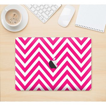 "The Pink & White Sharp Chevron Pattern Skin Kit for the 12"" Apple MacBook"