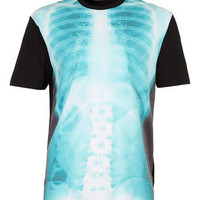 BLACK XRAY SKELETON T-SHIRT