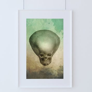 Medical Illustration Hydrocephalus Child's Skull Print Vintage Illustrated Vintage Human Giclee Cotton Canvas or Paper Canvas Wall Decor Art