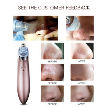 New Arrival Comedo Blackhead Vacuum Suction Diamond Removal Wrink Acne Pore Peeling Face Clean Facial Skin Care W1