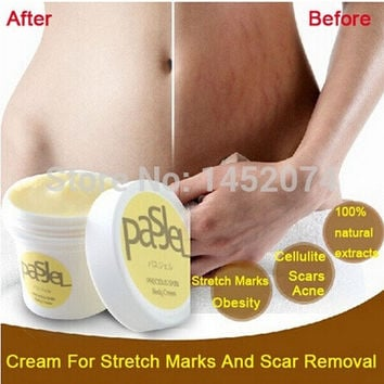 Powerful To Stretch Marks Maternity Essential Oil Skin Care Treatment Cream For Stretch Mark Remover Obesity Postpartum Repair (Size: 50 g, Color: Gold) = 1946281540