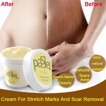 50g Skin Body Cream Remove Stretch Marks Treatment Postpartum Repair Whitening Pregnancy Scar Removal