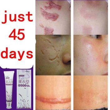 DCCKKFQ face anti care acne treatment cream scar removal oily skin Acne Spots skin care face stretch marks remover