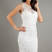 Sleeveless Lace Knee Length Dress