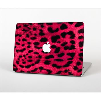 The Fuzzy Real Pink Leopard Print Skin Set for the Apple MacBook Pro 15""