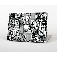 "The Black and White Lace Design Skin Set for the Apple MacBook Pro 13"" with Retina Display"