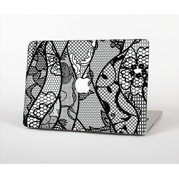 The Black and White Lace Design Skin Set for the Apple MacBook Air 11""