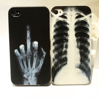 X-ray Skull Bone Case for iPhone