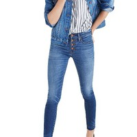 Madewell High Waist Skinny Jeans: Button-Through Edition (Rizzo Wash) | Nordstrom