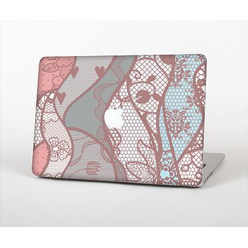 "The Pink & Teal Lace Design Skin Set for the Apple MacBook Pro 13"" with Retina Display"