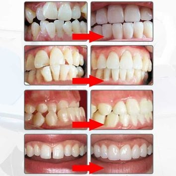 Orthodontic Braces Dental Braces Instant Smile Silicone Teeth Alignment Trainer Teeth Retainer Mouth Guard Braces Tooth Tray